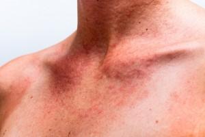 דלקת עור כתוצאה מאלרגיה
