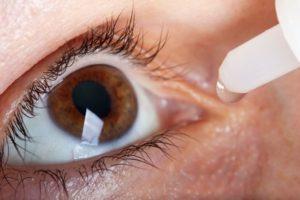 טיפול אירידיולוגיה לסובלים מאלרגיה