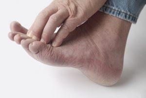 מהם הגורמים והתסמינים לארגיה ברגליים?