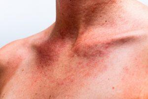 אלרגיה והמערכת החיסונית