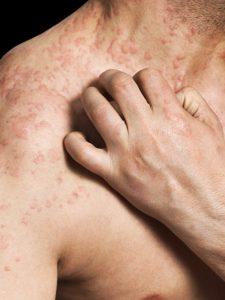 אלרגיה לניאומיצין
