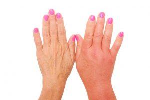 אלרגיה בידיים