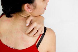 אלרגיה לזיעה