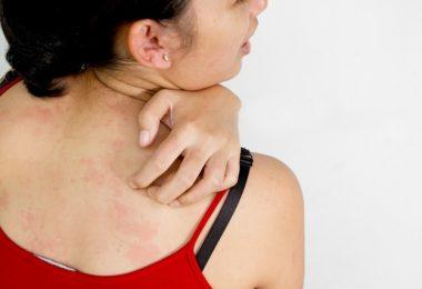 אלרגיה לעקיצות פשפשי מיטה